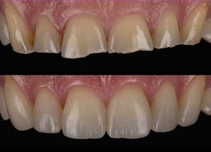 building-up-worn-down-teeth