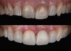 front-teeth-bonding