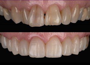 transform-crowded-and-aged-teeth
