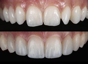 transforming-small-teeth